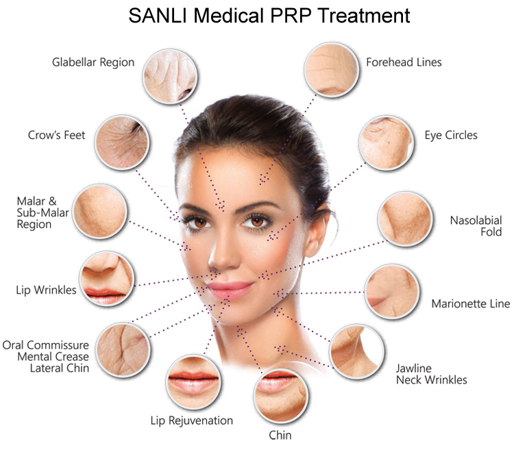 SANLI PRP Treatment News