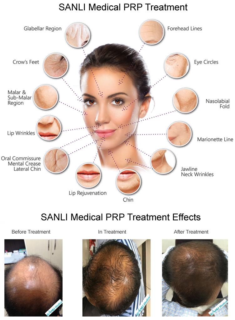 SANLI PRP Treatment