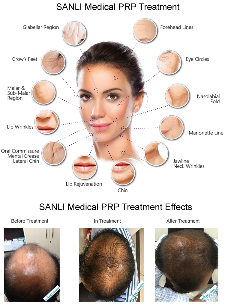 SANLI PRP Treatment